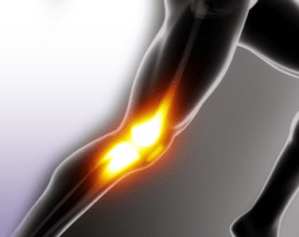 Knee Osteoarthritis Treatments Miami