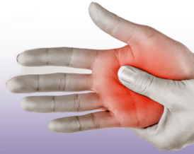 carpal tunnel syndrome treatments Miami