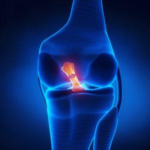 ¿Qué es Referred Pain Prolotheray Miami? width =