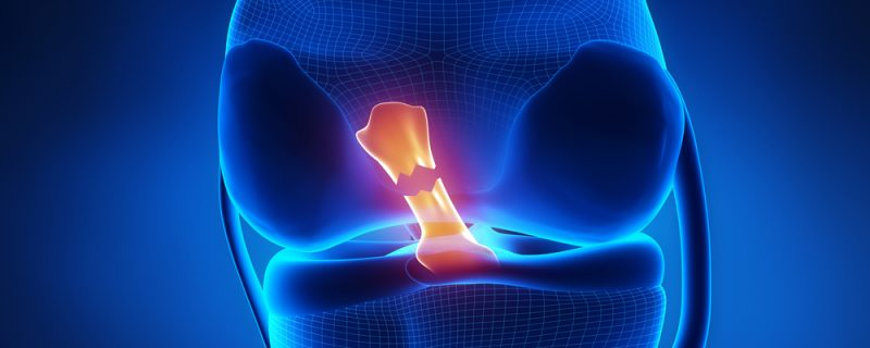 What is Referred Pain Prolotheray Miami