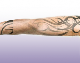 IS laser tattoo removal painless