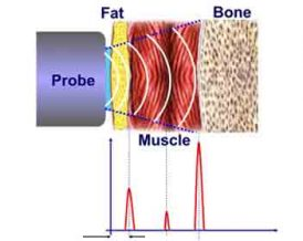 Ultrasound Body Analysis Miami GenLife Dr. Mahl