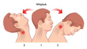 ways to prevent whiplash