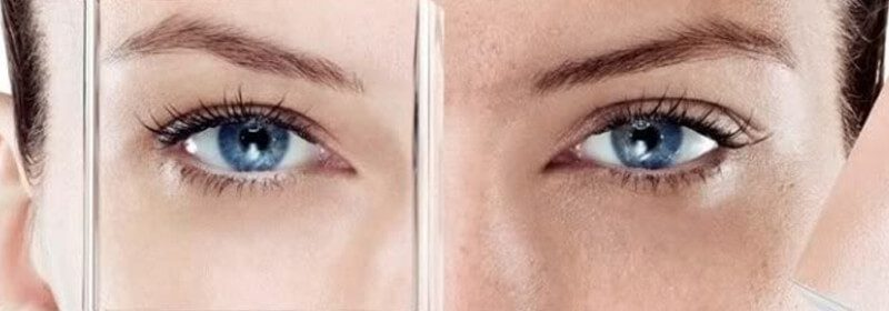 Eye Stem Cells Treatments Miami