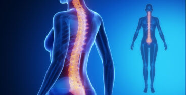 How PRP Treats Spinal Stenosis