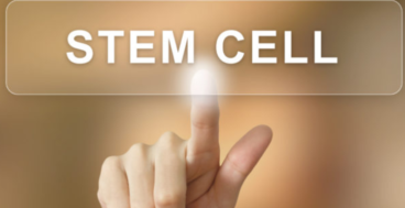 Stem Cell Prolotherapy for facture bones